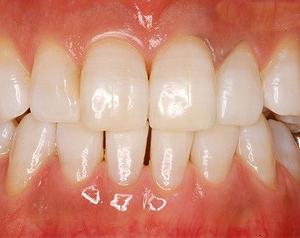 ホワイトニング治療症例写真after
