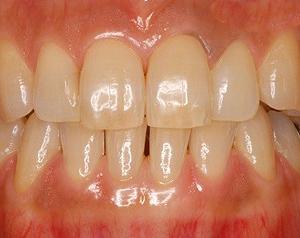 ホワイトニング治療症例写真before
